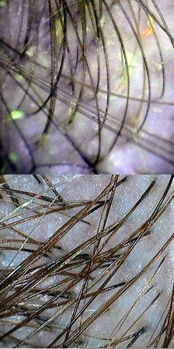 Cabelo oleoso - antes e depois